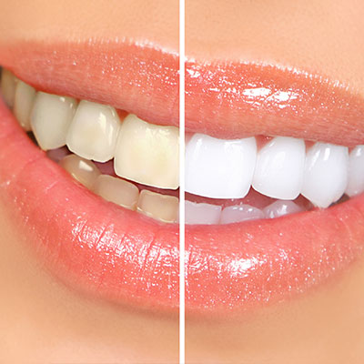 Teeth Whitening Warren MI, Auburn Hills MI